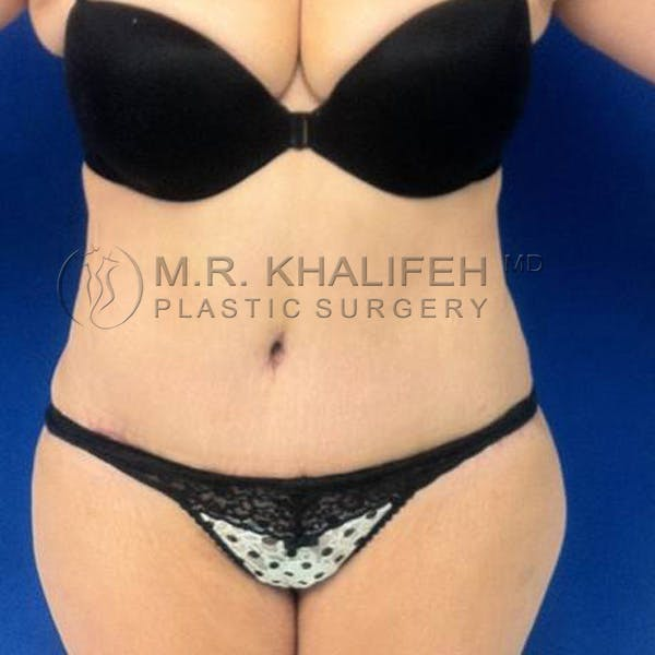 Tummy Tuck Gallery - Patient 3762080 - Image 2