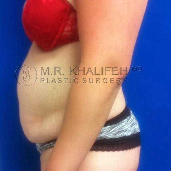 Tummy Tuck Gallery - Patient 3762080 - Image 3