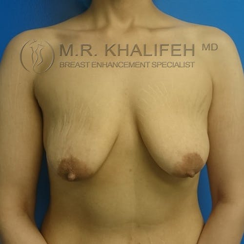 Breast Lift Gallery - Patient 3762082 - Image 1