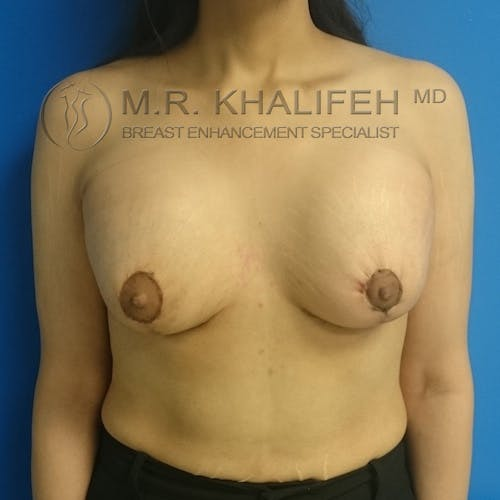 Breast Lift Gallery - Patient 3762082 - Image 2