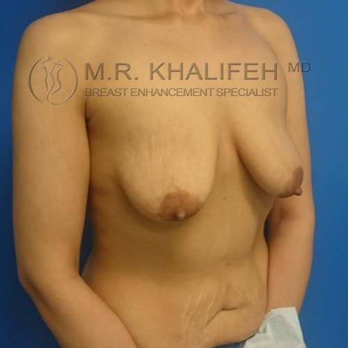 Breast Lift Gallery - Patient 3762082 - Image 3