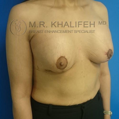 Breast Lift Gallery - Patient 3762082 - Image 4