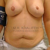 Tummy Tuck Gallery - Patient 3762083 - Image 1