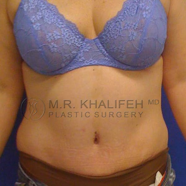 Tummy Tuck Gallery - Patient 3762083 - Image 2