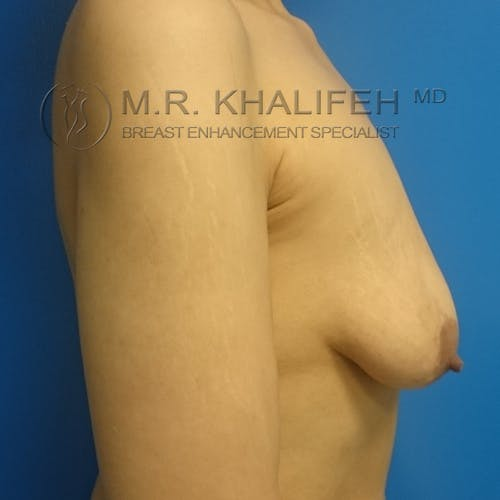 Breast Lift Gallery - Patient 3762082 - Image 7