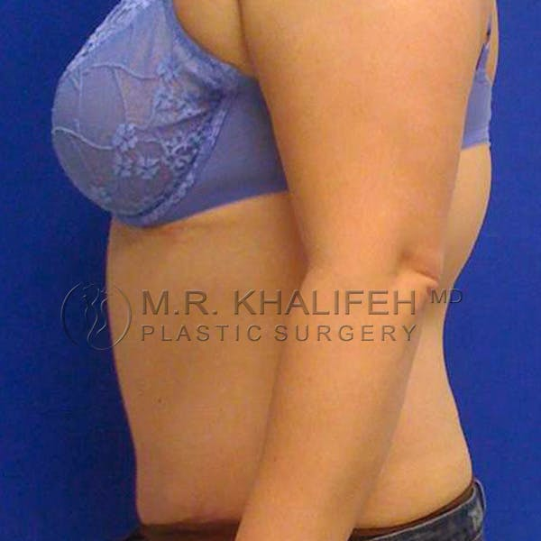 Tummy Tuck Gallery - Patient 3762083 - Image 4