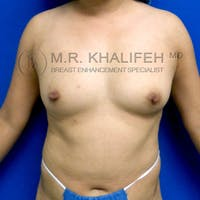 Breast Augmentation Gallery - Patient 3762091 - Image 1