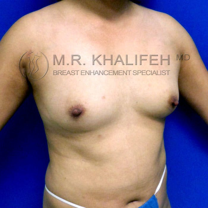 Breast Augmentation Gallery - Patient 3762091 - Image 3