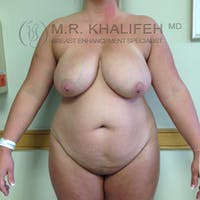 Breast Lift Gallery - Patient 3762113 - Image 1