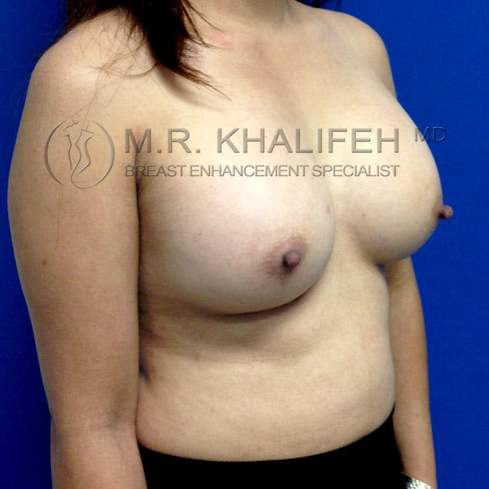 Breast Augmentation Gallery - Patient 3762091 - Image 4