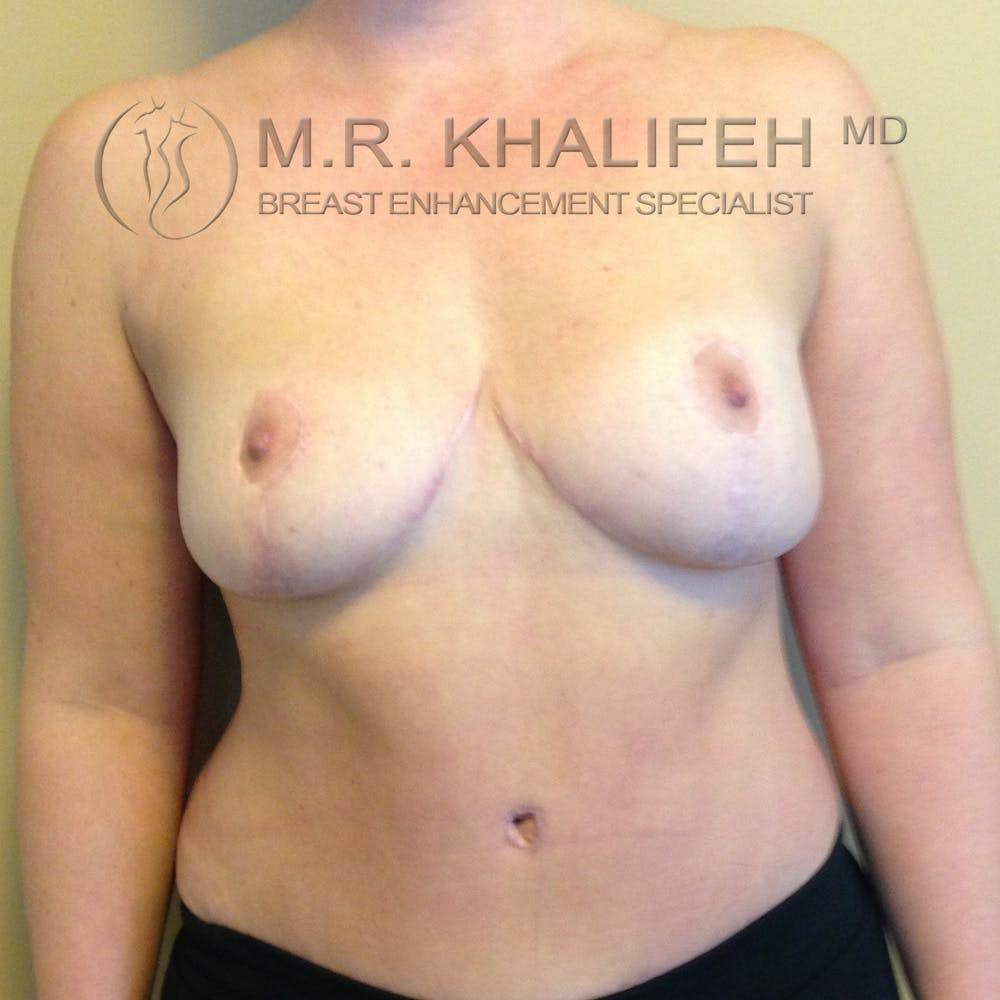 Breast Lift Gallery - Patient 3762113 - Image 2