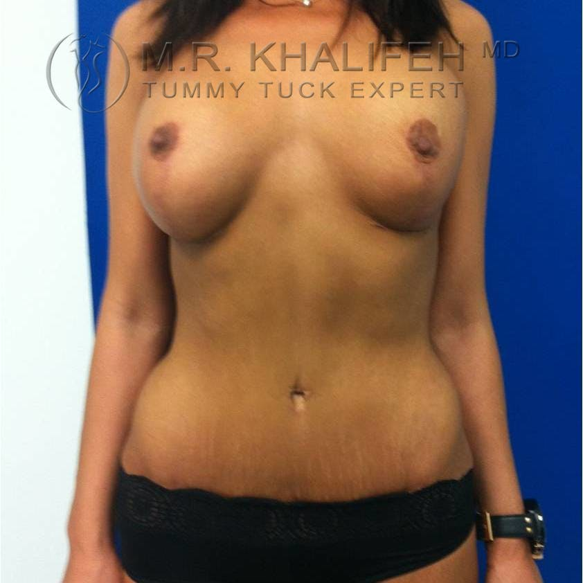 Tummy Tuck Gallery - Patient 3762092 - Image 2