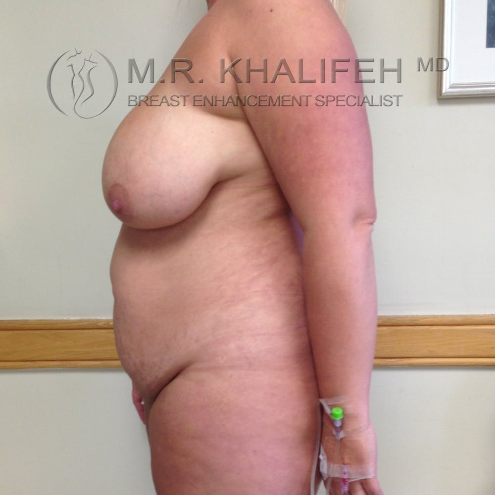 Breast Lift Gallery - Patient 3762113 - Image 3