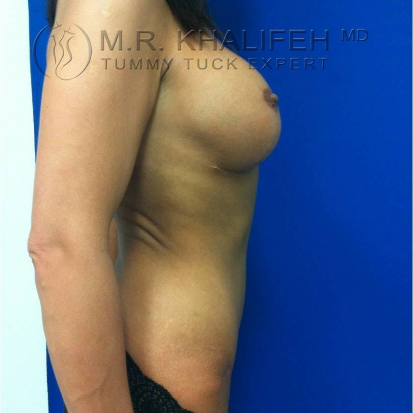 Tummy Tuck Gallery - Patient 3762092 - Image 4