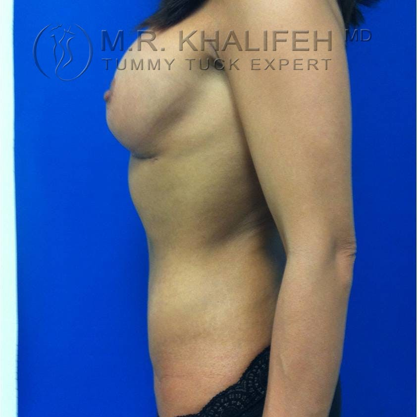Tummy Tuck Gallery - Patient 3762092 - Image 6