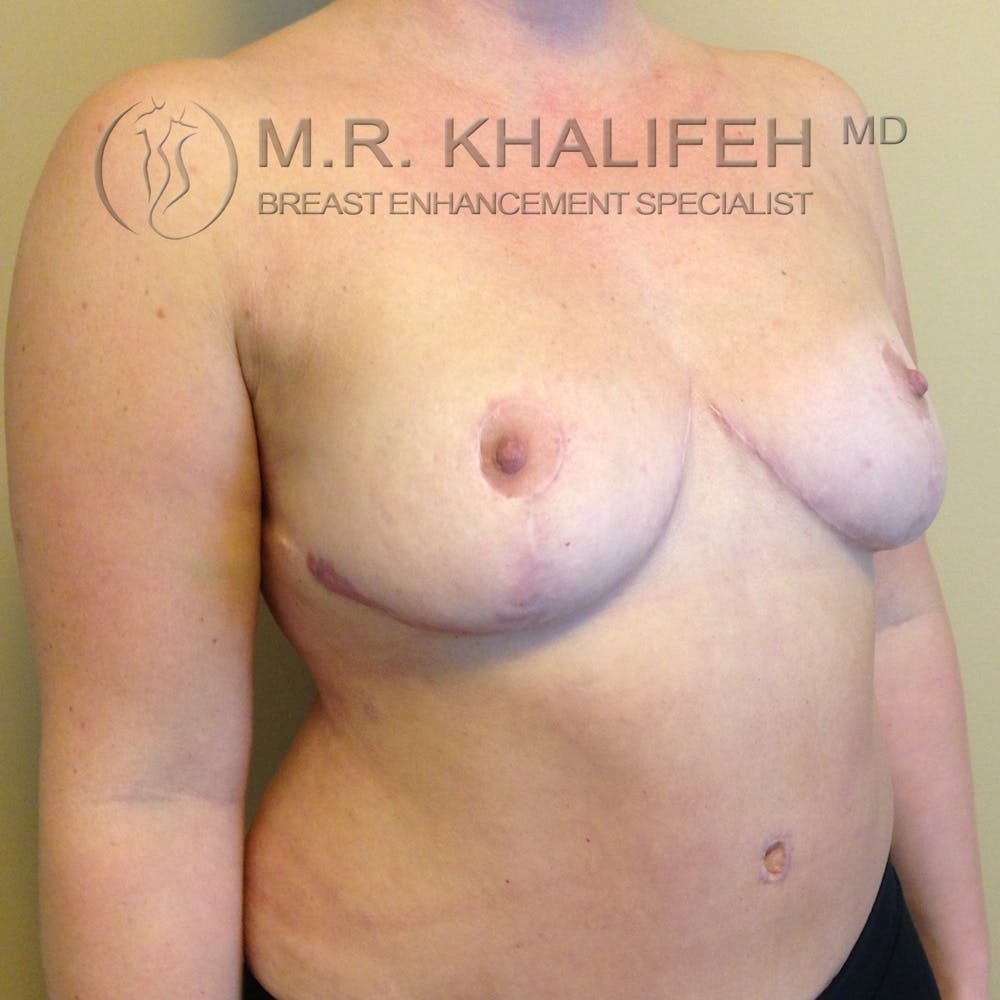 Breast Lift Gallery - Patient 3762113 - Image 6