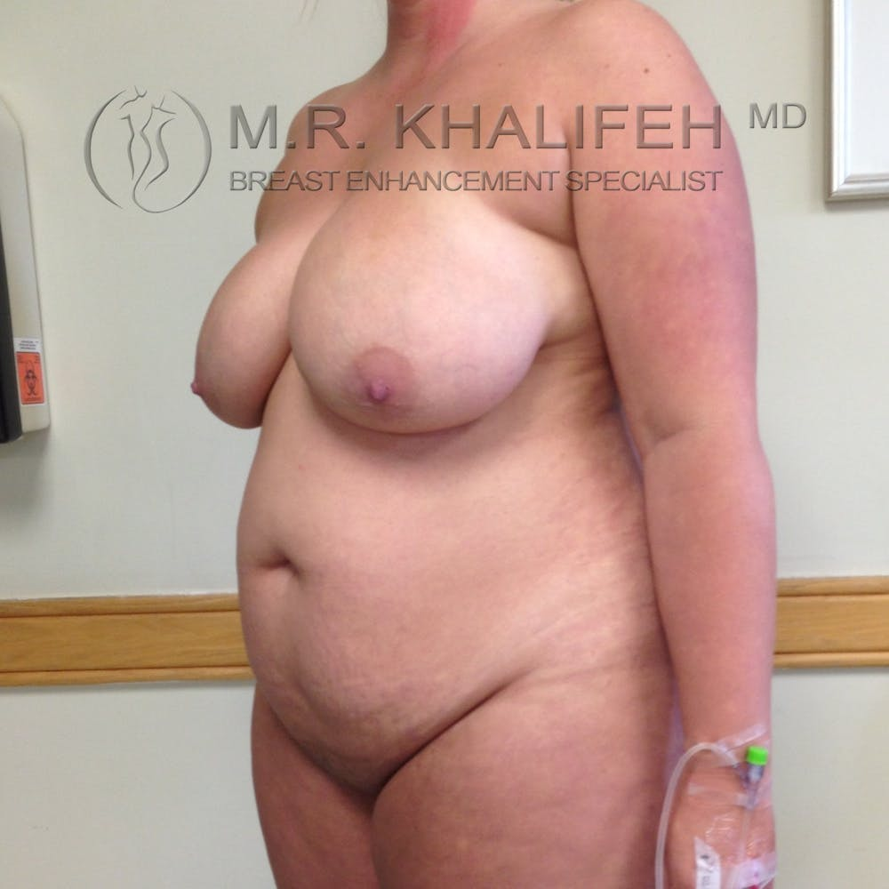 Breast Lift Gallery - Patient 3762113 - Image 7