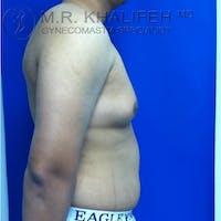 Gynecomastia Gallery - Patient 3762117 - Image 1