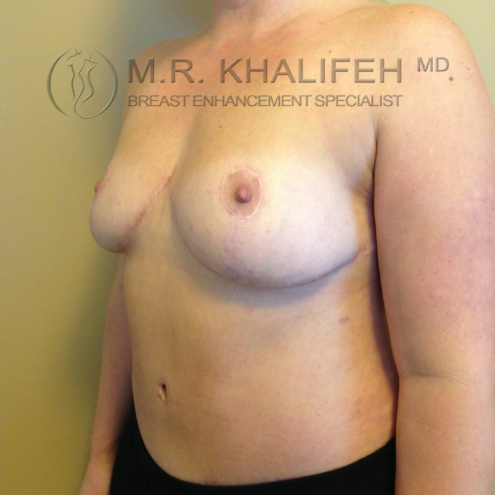 Breast Lift Gallery - Patient 3762113 - Image 8
