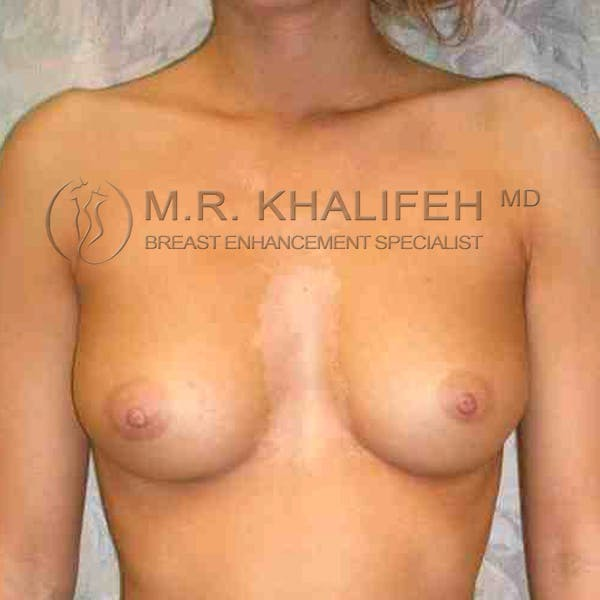 Breast Augmentation Gallery - Patient 3762115 - Image 1