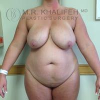 Tummy Tuck Gallery - Patient 3762120 - Image 1