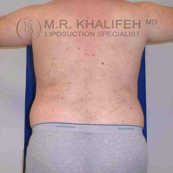 Male Liposuction Gallery - Patient 3762118 - Image 1