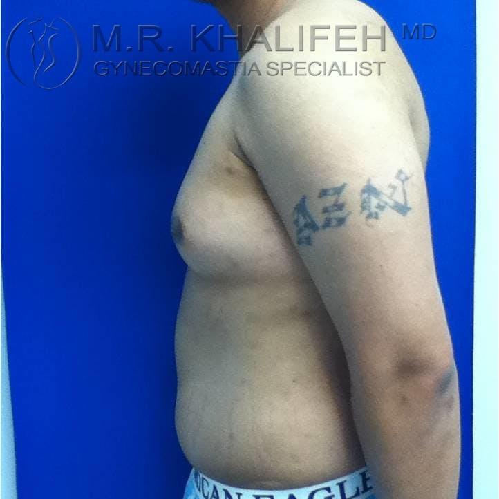 Gynecomastia Gallery - Patient 3762117 - Image 3