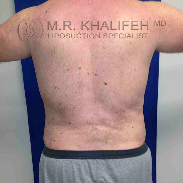 Male Liposuction Gallery - Patient 3762118 - Image 2