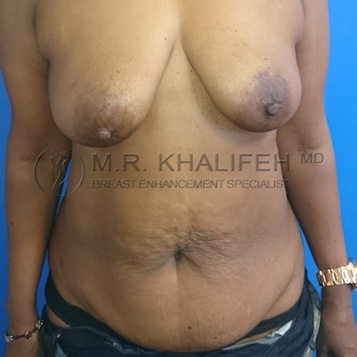 Breast Lift Gallery - Patient 3762119 - Image 1