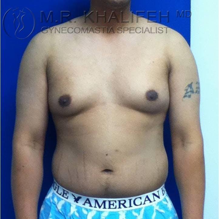 Gynecomastia Gallery - Patient 3762117 - Image 5
