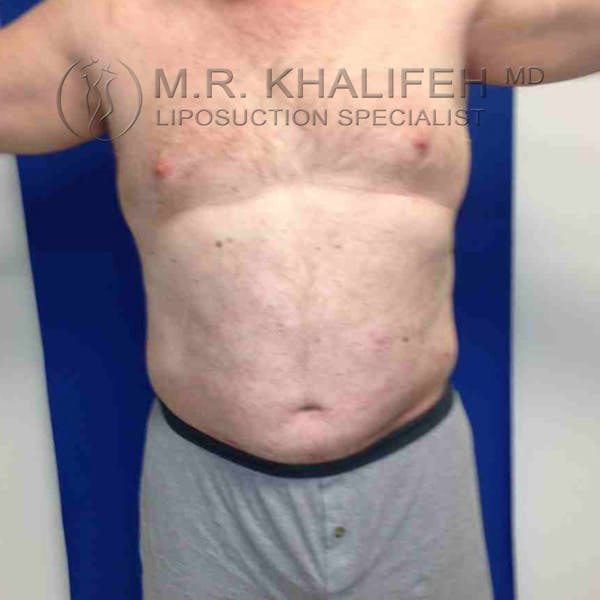 Male Liposuction Gallery - Patient 3762118 - Image 4