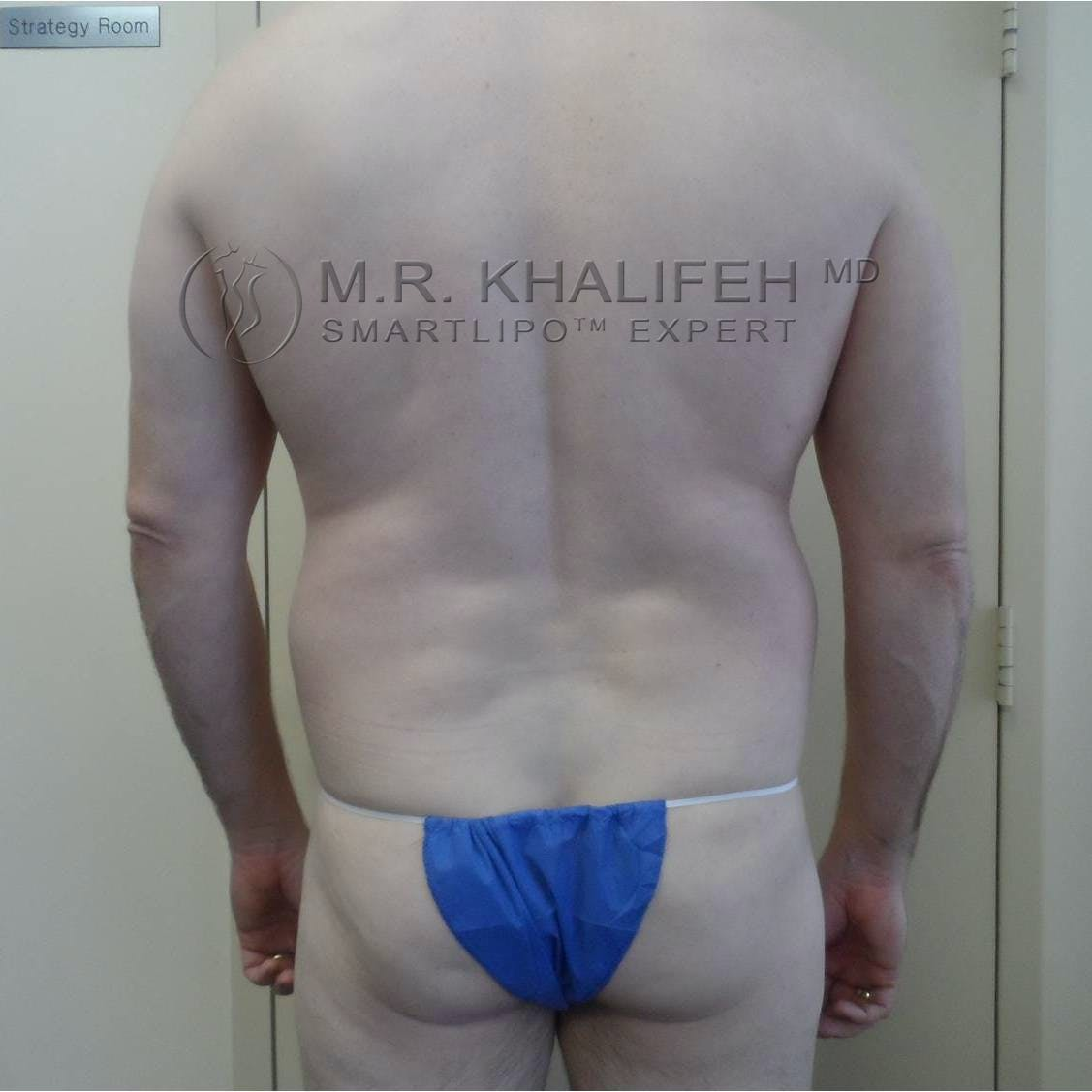 Male Liposuction Gallery - Patient 3762130 - Image 1
