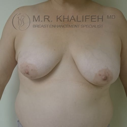 Breast Lift Gallery - Patient 3762133 - Image 1