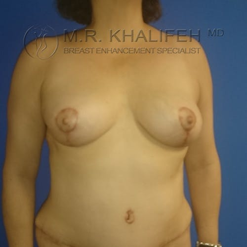 Breast Lift Gallery - Patient 3762133 - Image 2