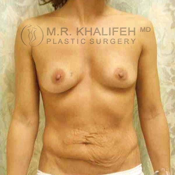 Breast Augmentation Gallery - Patient 3762132 - Image 1