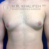 Gynecomastia Gallery - Patient 3762146 - Image 1