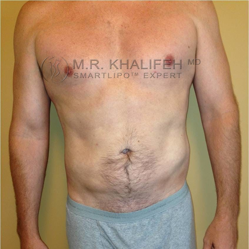 Male Liposuction Gallery - Patient 3762130 - Image 6