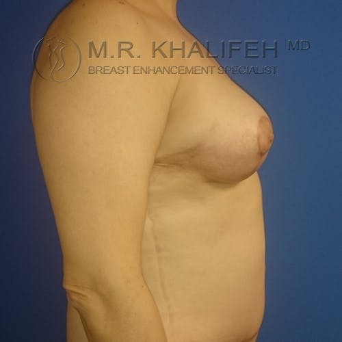 Breast Lift Gallery - Patient 3762133 - Image 6