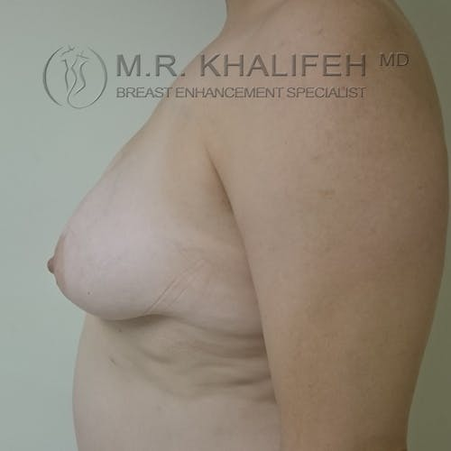 Breast Lift Gallery - Patient 3762133 - Image 7