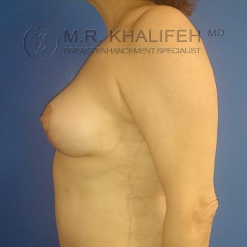 Breast Lift Gallery - Patient 3762133 - Image 8