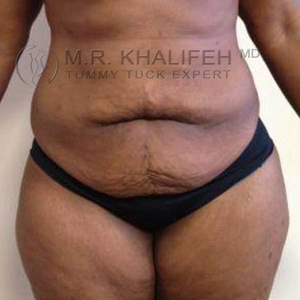 Tummy Tuck Gallery - Patient 3762135 - Image 1