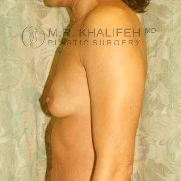 Breast Augmentation Gallery - Patient 3762132 - Image 5