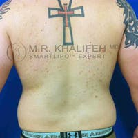 Male Liposuction Gallery - Patient 3762144 - Image 1