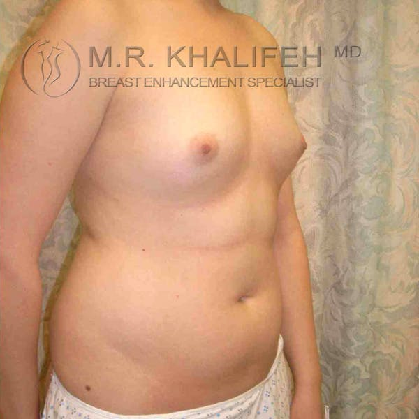 Breast Augmentation Gallery - Patient 3762147 - Image 1