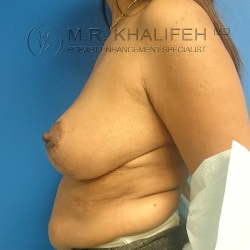 Breast Lift Gallery - Patient 3762148 - Image 4