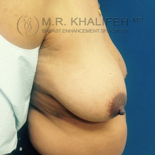 Breast Lift Gallery - Patient 3762148 - Image 7