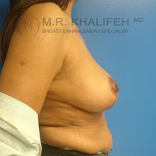 Breast Lift Gallery - Patient 3762148 - Image 8