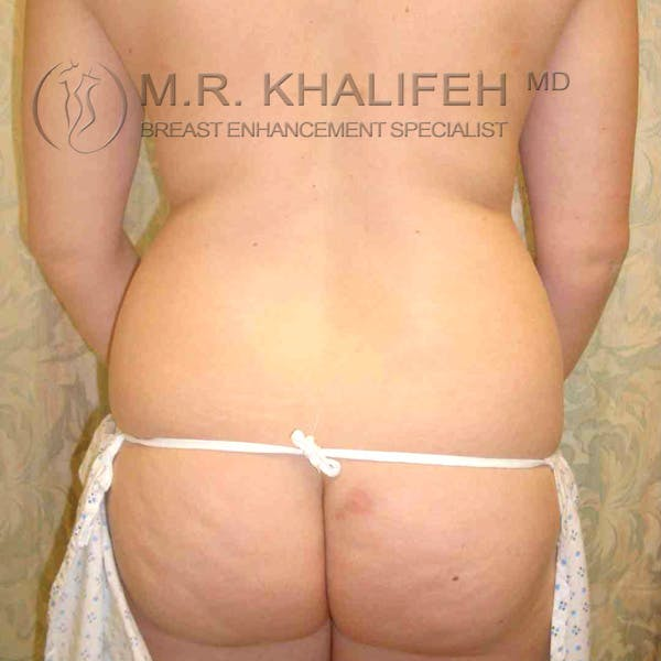 Breast Augmentation Gallery - Patient 3762147 - Image 7