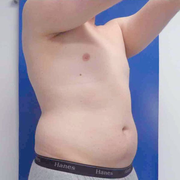 Male Liposuction Gallery - Patient 3762159 - Image 1