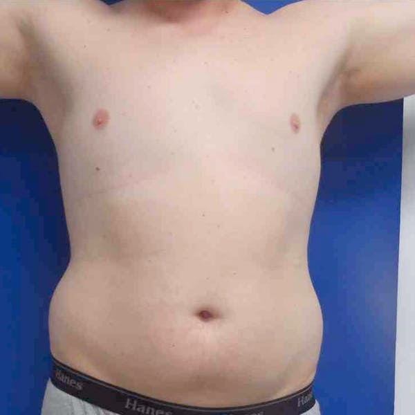 Male Liposuction Gallery - Patient 3762159 - Image 3